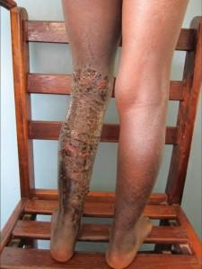 Pyodermie nach herbal drugs Bein 1
