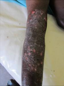 Pyodermie nach herbal drugs Bein 2 Tg später 3